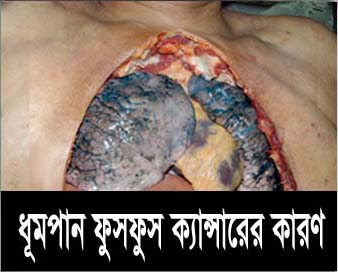 Bangladesh Health Effects Lung - lung cancer, diseased organ (Bengali)
