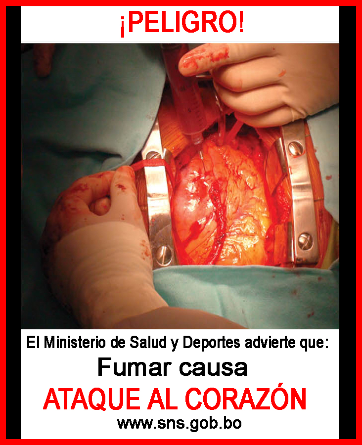 Bolivia 2011 Health Effects heart - heart attack, open heart, graphic