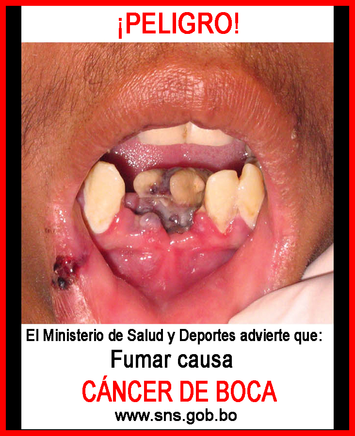 Bolivia 2011 Health Effects mouth - diseased organ, oral cancer, gross