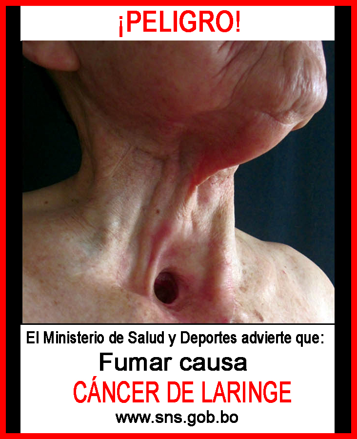 Bolivia 2011 Health Effects other - lived experience, throat cancer, gross