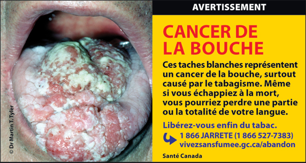 Canada 2012  Health Effects mouth - mouth cancer, gross - fr