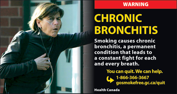 Canada 2012  Health Effects lung - lived experience, chronic bronchitis - cigars eng
