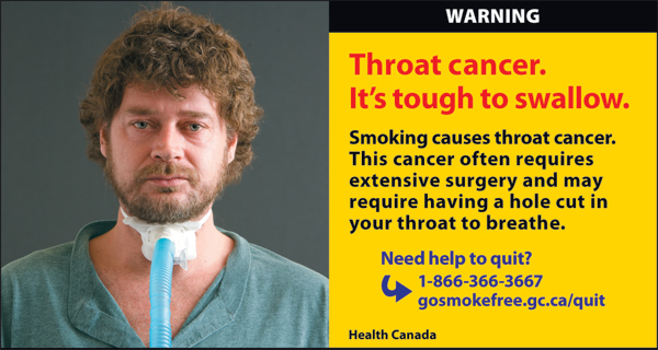 Canada 2012  Health Effects other - lived experience, throat cancer - cigars eng