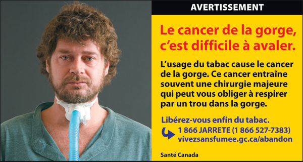 Canada 2012  Health Effects other - lived experience, throat cancer - cigars fr