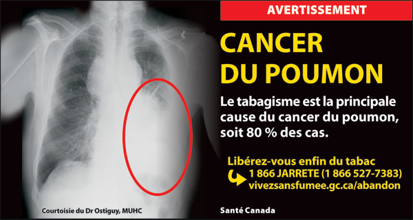 Canada 2012 Health Effects lung - xray, lung cancer - cigar fr