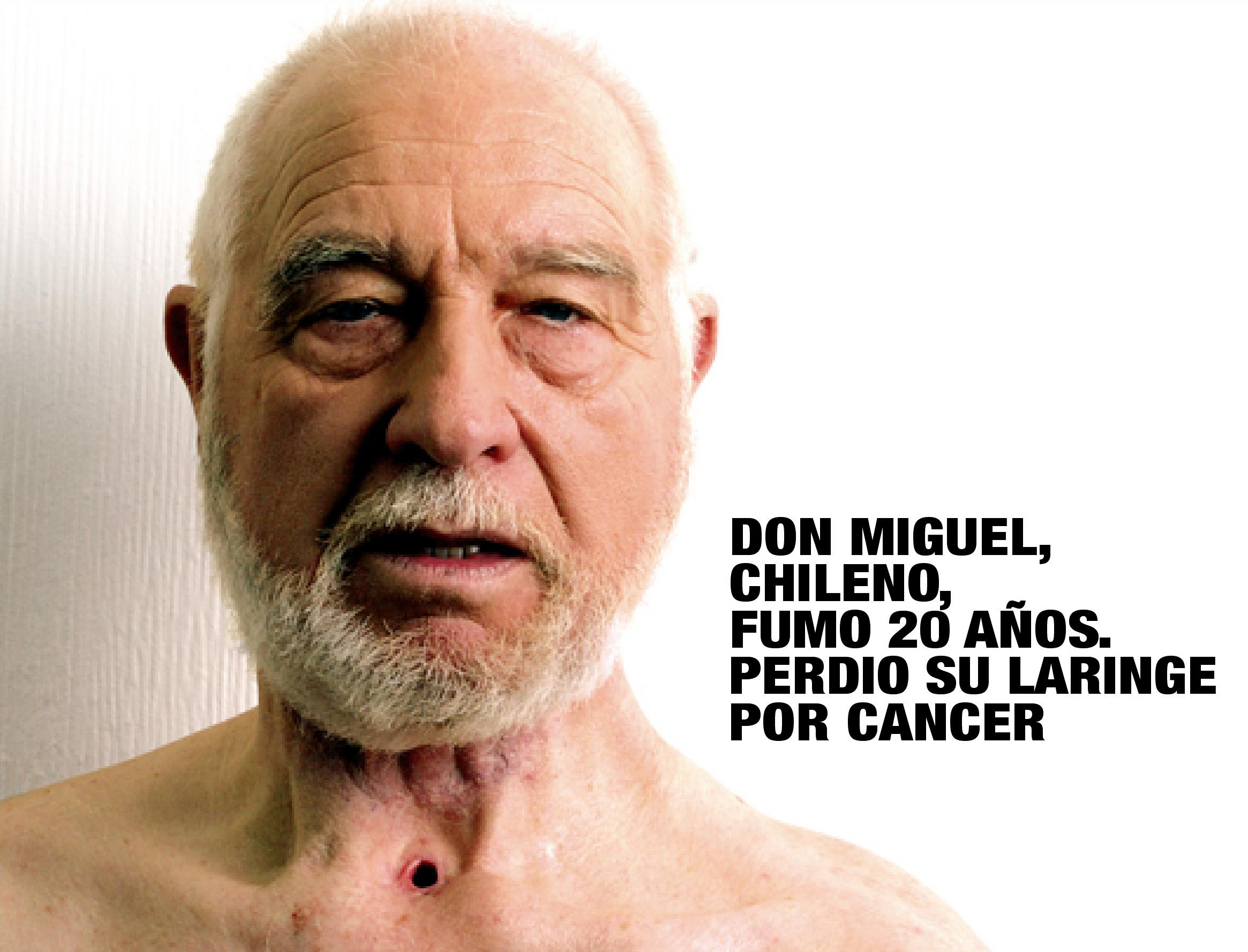 Chile 2006 Health Effects other - lived experience, cancer of larynx