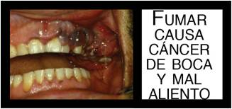 Colombia 2009 Health Effects mouth - mouth diseased, gross
