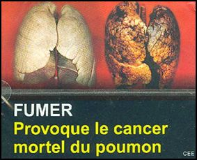 Djibouti 2009 Health Effects lung - diseased organ, lung cancer, gross - French