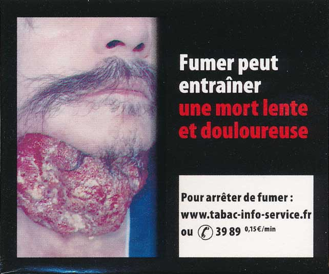 France2011bHealthEffectsDeath-diseasedorgan_gross