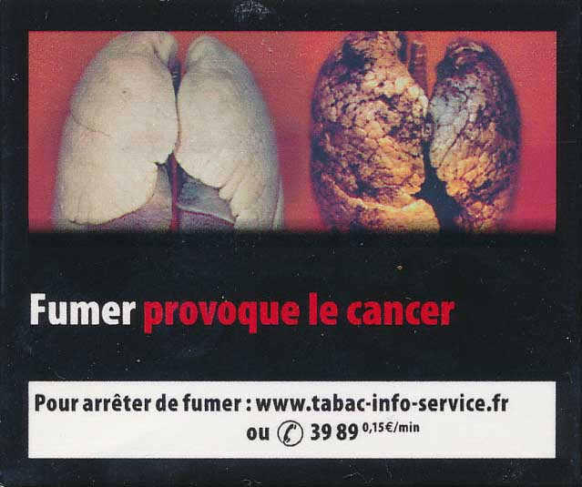 France2011bHealthEffectsLung-diseasedorgan_lungcancer_gross