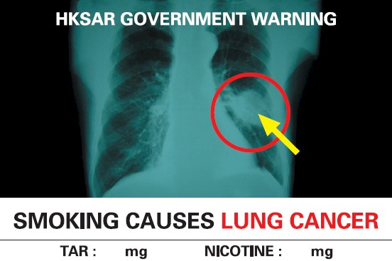 Hong Kong 2007 Health Effects lung - internal image, lung cancer, english