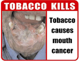 India 2007 Health Effects Mouth - mouth cancer, gross