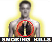 India 2011 Health Effects Lung - Diseased lung 2