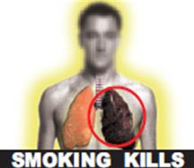 India 2011 Health Effects Lung - Diseased lung 3