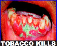 India 2011 Health Effects Mouth (Smokeless Tobacco Products) - diseased mouth, gross