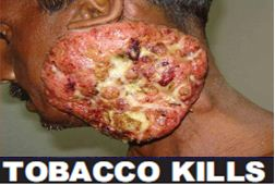 India 2011 Health Effects Other (Smokeless Tobacco Products) - diseased organ, gross