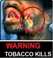 India 2013 Health Effects Mouth (Smokeless Tobacco Products) - diseased organ, gross 2