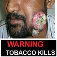India 2013 Health Effects Mouth (Smokeless Tobacco Products) - diseased organ, gross 3