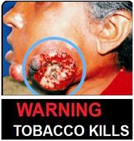 India 2013 Health Effects Mouth (Smokeless Tobacco Products) - diseased organ, gross
