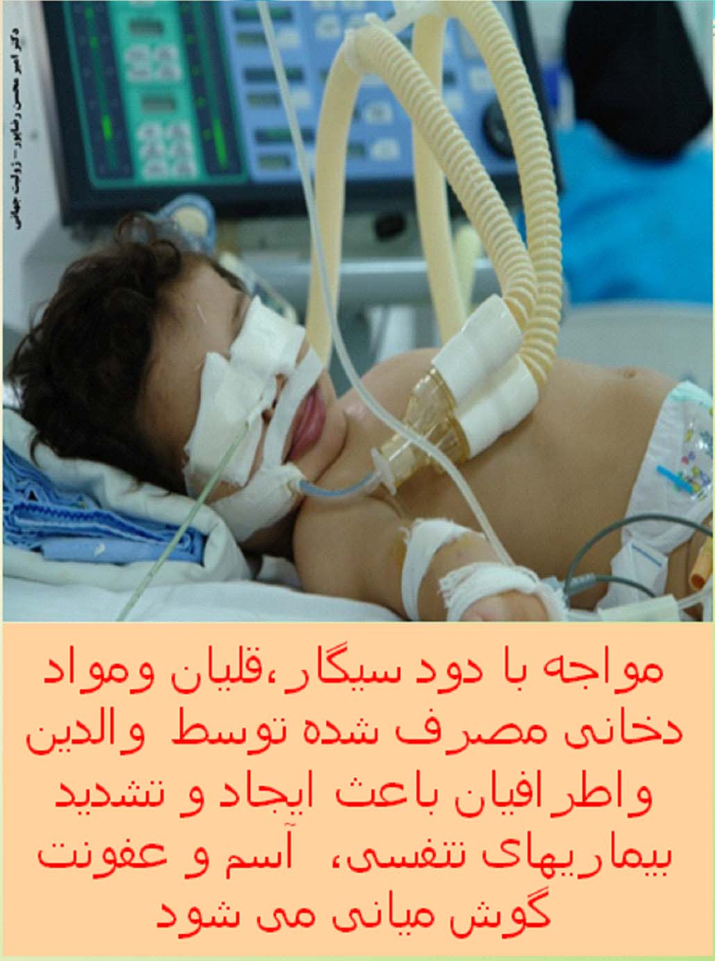 Iran 2009 ETS Baby - child wearing respirator, lived experience