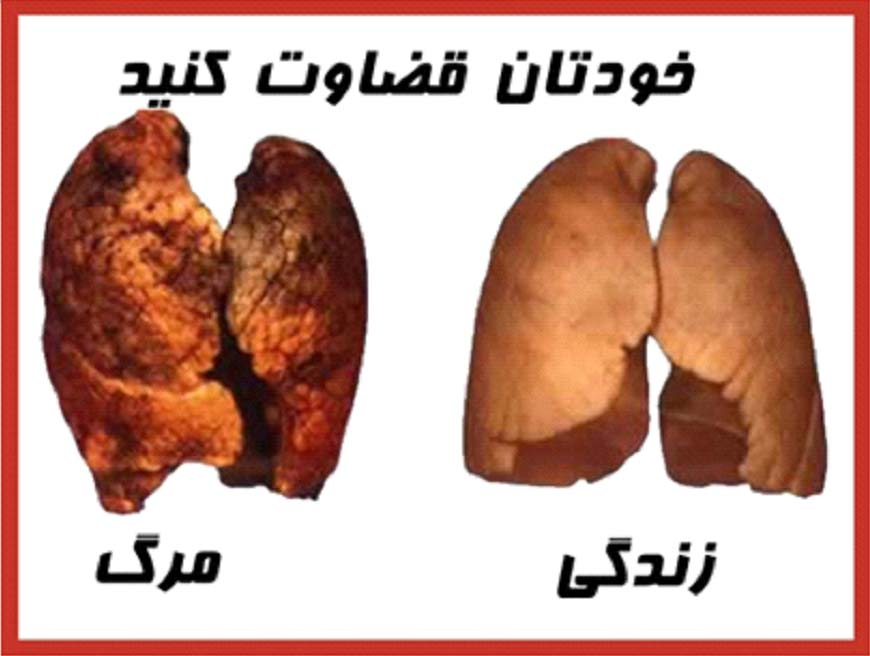 Iran 2009 Health Effects Death - Life or death, diseased lung