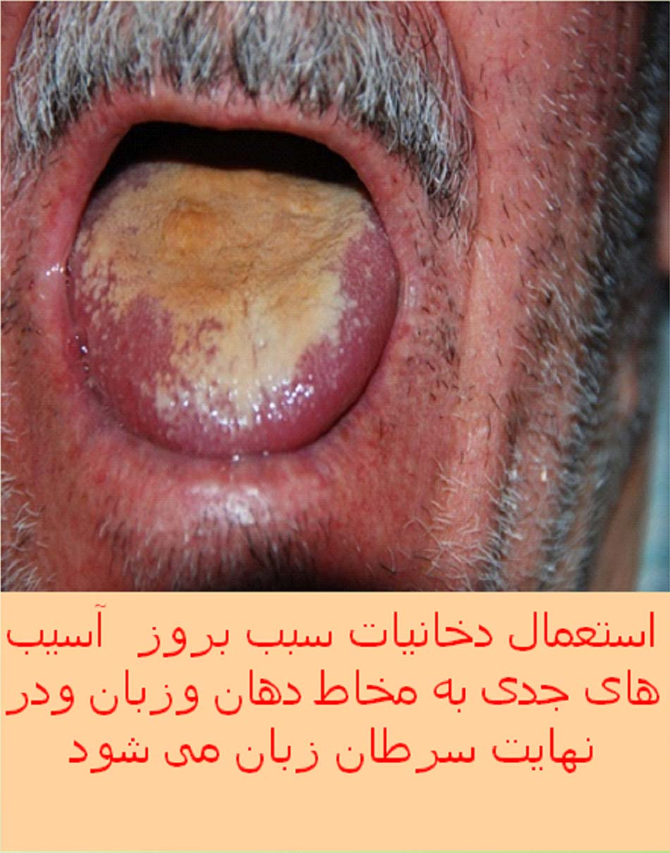 Iran 2009 Health Effects Mouth - tongue cancer, gross