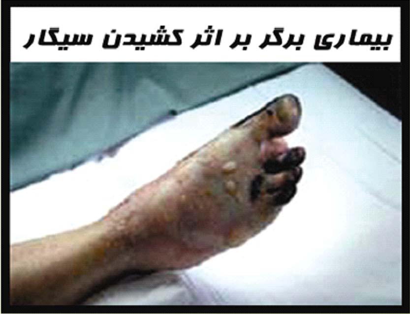 Iran 2009 Health Effects PVD - Buerger's disease, gross