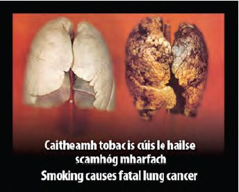 Ireland 2013 Health Effects Lungs - diseased organ, lung cancer, gross