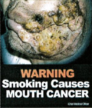 Jamaica 2013 Health Effect mouth - mouth cancer, gross, lived experience (front)
