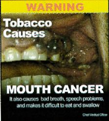 Jamaica 2013 Health Effect mouth - teeth, gums, gross, smokeless warning (back)
