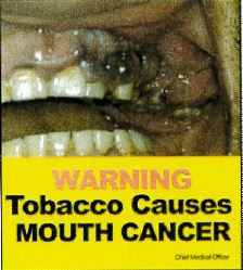 Jamaica 2013 Health Effect mouth - teeth, gums, gross, smokeless warning (front)