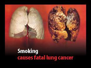 Jersey 2012 Health Effects lung - diseased organ, lung cancer, gross