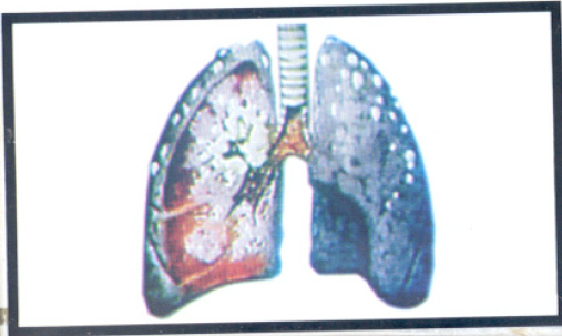 Jordan 2005 Health Effects lung - diseased organ, no text