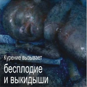 Kazakhstan 2013 ETS baby - lived experience, premature childbirth and death, graphic