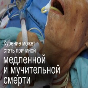Kazakhstan 2013 Health Effect death - slow and painful death, lived experience
