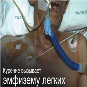 Kazakhstan 2013 Health Effect lung - emphysema