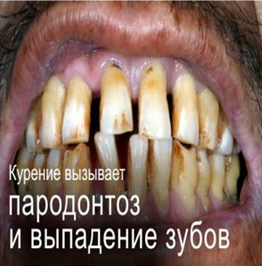 Kazakhstan 2013 Health Effect mouth -diseased teeth, gross