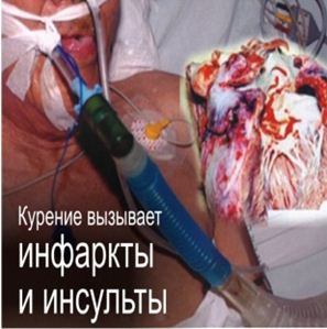 Kazakhstan 2013 Health Effects heart - heart attack and stroke, lived experience