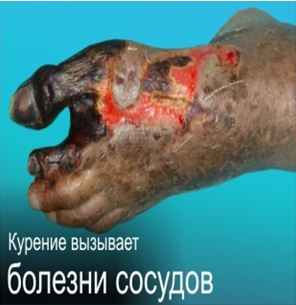 Kazakhstan 2013 Health Effects vascular system - gangrene, necrosis, gross