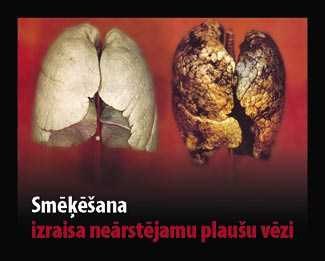 Latvia 2010 Health Effects lung - diseased organ, lung cancer, gross