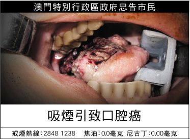 Macau 2013 Health Effects mouth - oral cancer, gross (Chinese)