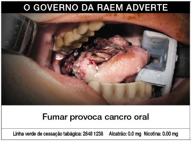Macau 2013 Health Effects mouth - oral cancer, gross (Portuguese)