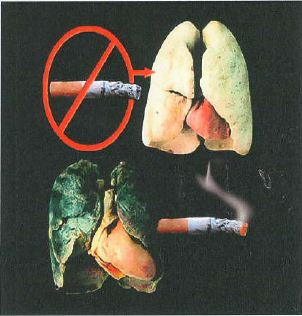 Madagascar 2012-2013 Health Effects lung - diseased organ, lung cancer, gross (image)