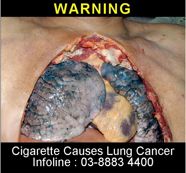 Malaysia 2008 Health Effects Lung - Lung cancer, open chest (back)