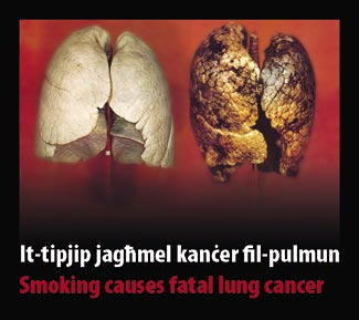 Malta 2009 Health Effects lung - diseased organ, lung cancer, gross