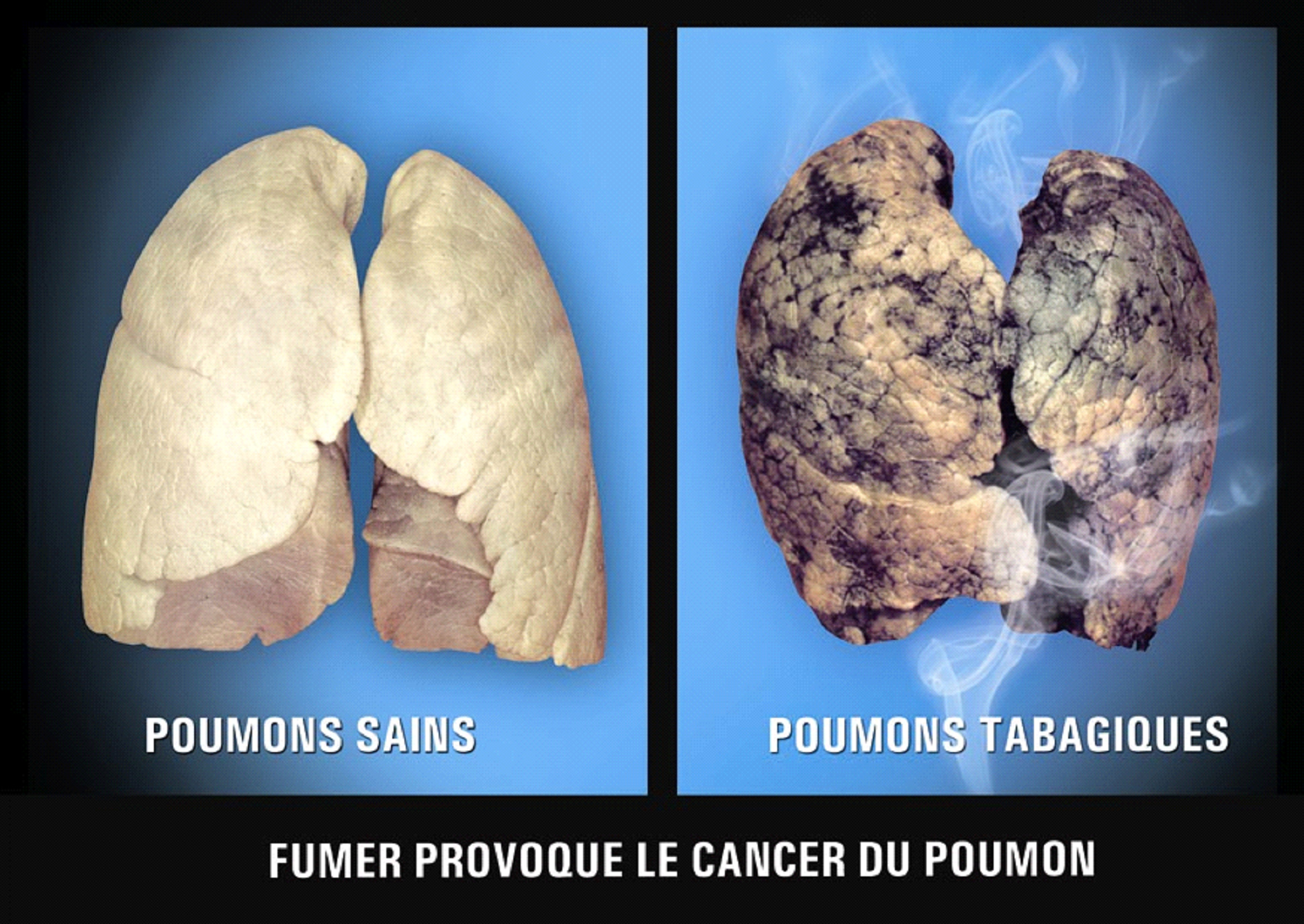 Mauritius 2009 Health Effects Lung - healthy vs unhealthy comparison, lung cancer