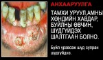 Mongolia 2010 Health Effects mouth - diseased organ, gross