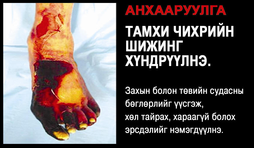 Mongolia 2010 Health Effects vascular system - diseased organ, leg, gross