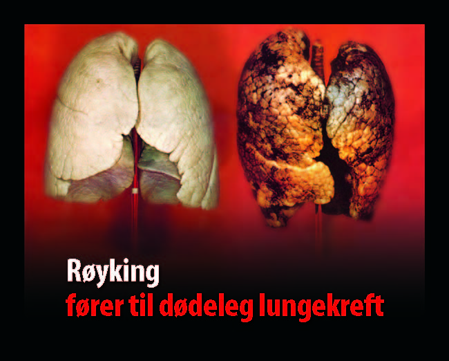 Norway 2009 Health Effects Lung - healthy vs unhealthy comparison
