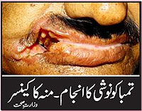 Pakistan 2010 Health Effects mouth - diseased organ, gross